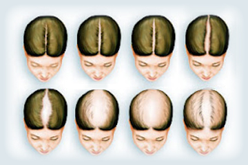 Female Pattern Baldness & Hair Loss Treatment