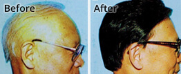 Male Pattern Baldness Testimonial
